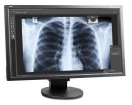 Der NEC Multisync EA275wmi eignet sich zur korrekten Wiedergabe medizinischer Bilder